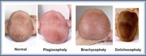 What are the causes a flat head syndrome
